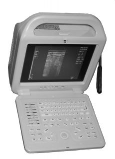 Laptop Ultrasound scanner 12screen& Rectal probe 5 10Mhz  low price