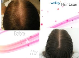 Hair Care Laser Therapy Hair Regrowth Cutting Edge Tech for Home