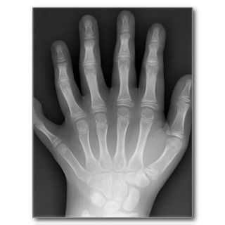 Six Fingered Hand, Medical Rarity, X Ray Post Cards